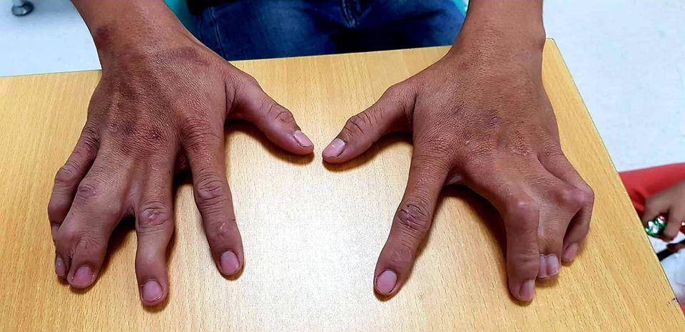 Bàn tay của cha bé N. cũng bị dị tật càng tôm hùm
