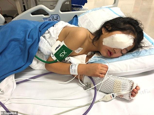 May mắn cầu mắt của cô bé không bị tổn thương và phẫu thuật thẩm mỹ sẽ khắc phục một phần hậu quả.
