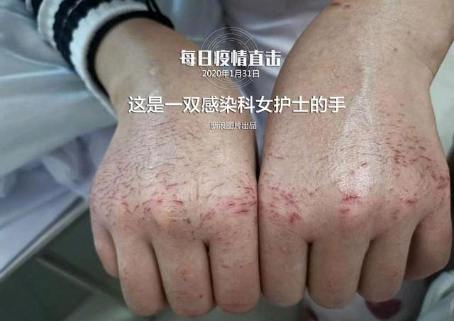 Đôi bàn tay nứt nẻ, sưng lên của một nữ y tá sau khi ngâm, khử trùng 84 lần để đảm bảo an toàn y tế khi chữa trị.