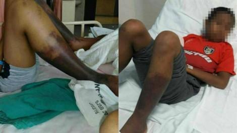 Cậu học sinh 11 tuổi chết vì bị đánh đến hoại tử chân