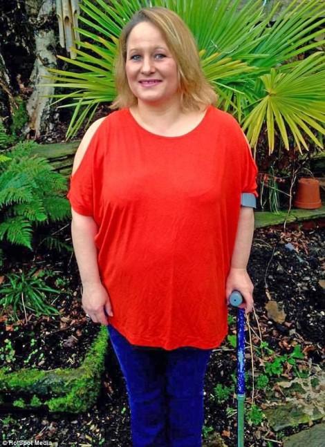 Người phụ nữ suýt mất đôi chân sau khi cạo lông vùng kín