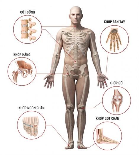 Ăn nhiều chất béo dễ viêm xương khớp