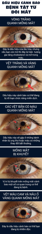 Những bệnh nguy hiểm bộc lộ qua đôi mắt