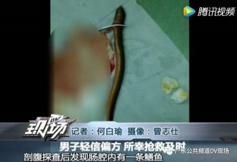 Cho lươn sống vào bụng để 'thông ruột', người đàn ông suýt mất mạng