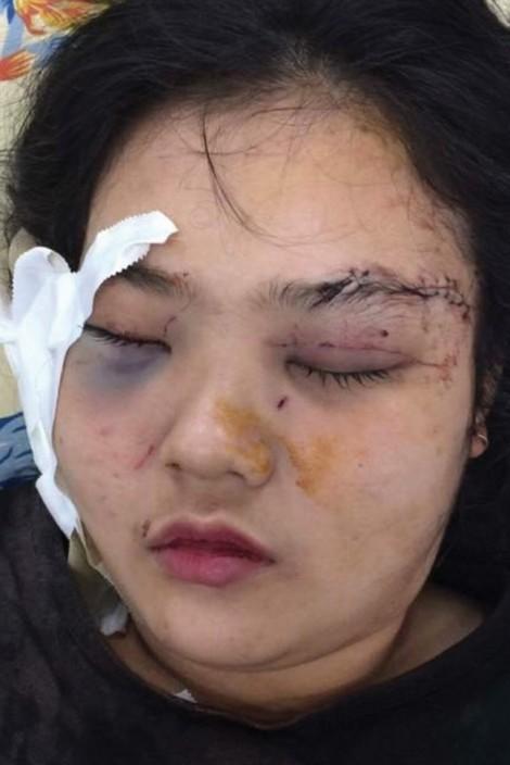 Vụ thiếu nữ bị hành hung dã man ở Sài Gòn: Gia đình lo vụ án bị 'chìm xuồng'