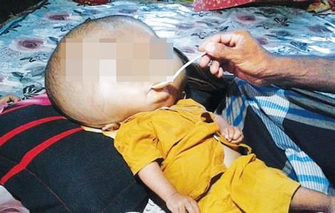 Nhiều trẻ em Việt Nam bị não úng thủy do biến chứng viêm màng não