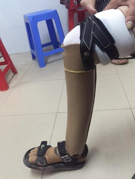 Đã dùng chân giả vẫn bị chân ma... 'hiện về' hành đau nhức