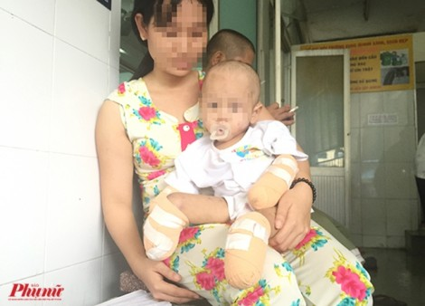 Bé gái 2 tuổi bị cắt bỏ hết tay chân sau cơn nóng sốt