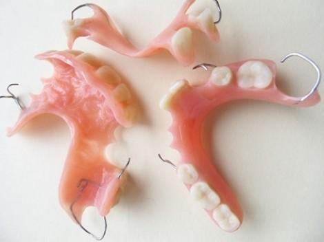 Người đàn ông không nói chuyện được mỗi sáng vì hóc răng giả suốt hai năm