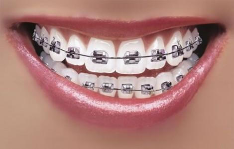 Dây cung niềng răng kẹt trong bụng suốt 10 năm