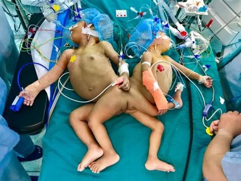 Hơn 20 bác sĩ Sài Gòn mổ tách 2 bé song sinh dính liền mông