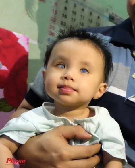 Đôi mắt nào cho bé Quỳnh Anh?