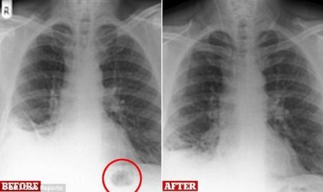 Đồ chơi kẹt trong phổi bệnh nhân suốt 40 năm, bác sĩ tưởng ung thư