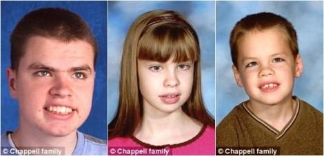 Căn bệnh thần kinh khiến 3 anh chị em qua đời chỉ trong 3 ngày