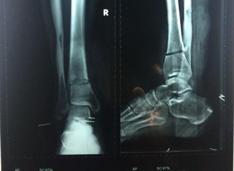 Kinh hoàng người đàn ông dùng áo bọc chân gần đứt lìa đến bệnh viện