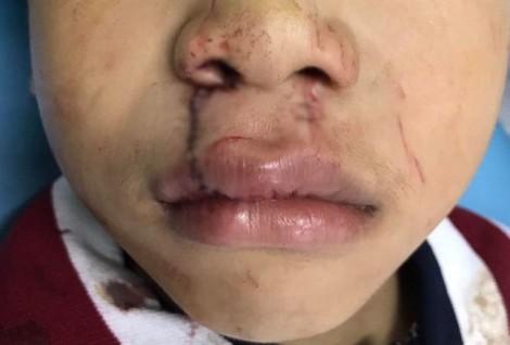 Bé trai bị cửa kính trường học 'chém' gần đứt lìa môi