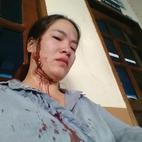 Đến thăm con ở chỗ chồng cũ, mẹ bị đánh đổ máu