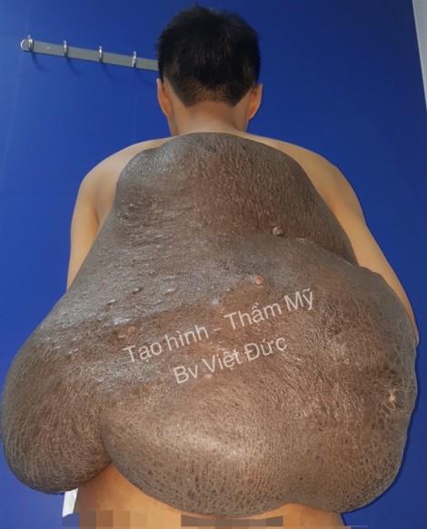 Chàng trai 26 năm ngủ ngồi vì đeo 'mai rùa' khổng lồ 15 kg