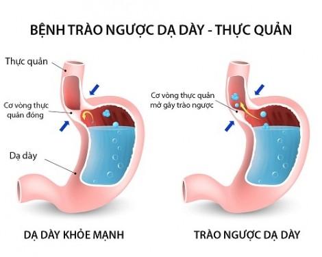 Bệnh trào ngược dạ dày - thực quản làm tăng nguy cơ ung thư họng, amidan, xoang