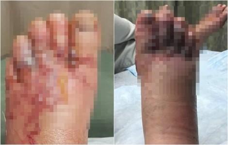 Đôi tình nhân nhiễm giun móc vì đi chân trần trên bãi biển