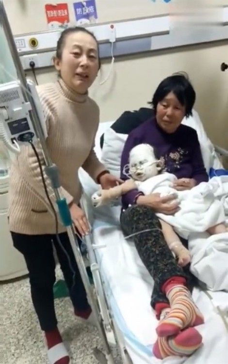 Bé trai bỏng nặng vì máy sưởi rơi vào đầu trong lúc ngủ