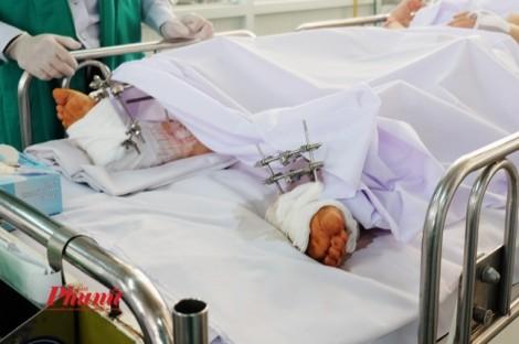 Món quà cuối năm của bác sĩ dành cho cô gái bị xe tông nát chân khi ngồi trong nhà
