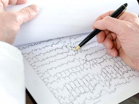 Rối loạn nhịp tim nên ăn gì?