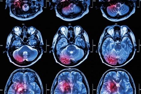 Chấn thương sọ não ở trẻ em dễ nhầm với 2 bệnh này