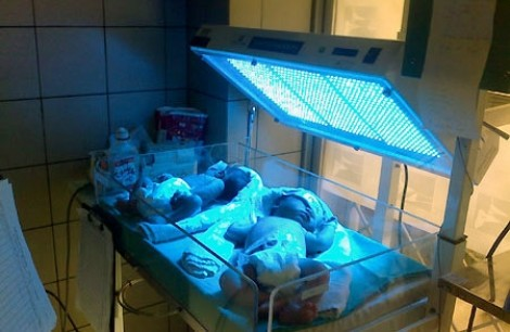Bác sĩ chỉ cách phát hiện sớm vàng da cho trẻ sơ sinh dưới ánh nắng mặt trời