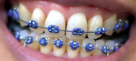 Có nên niềng răng cho trẻ em?