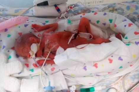 Chào đời quá sớm, làn da bé sơ sinh mỏng đến mức nhìn thấy hộp sọ