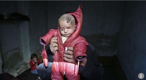 Chuyến hành trình đến Thổ Nhĩ Kỳ của cậu bé một mắt người Syria