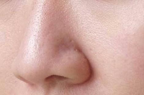 Những vấn đề thường gặp về da trong mùa hè và cách phòng chống