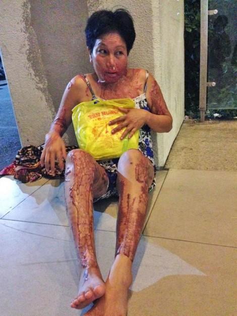 Tạt a-xít vợ gây thương tật 86%, vẫn nhởn nhơ ngoài vòng pháp luật
