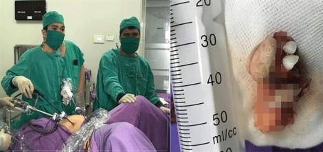 Bé gái 12 tuổi đã bị u quái buồng trứng
