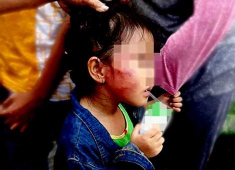 Sau 1 ngày bị đánh, mặt bé gái ở cơ sở mầm non Ánh Sao Vàng còn in hình ngón tay cô giáo