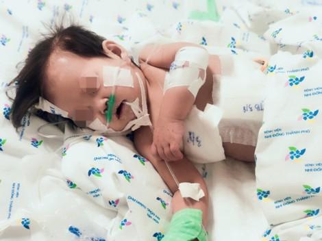 Nằm viện 10 ngày, bé gái nhiễm 2 vi khuẩn kháng tất cả các thuốc