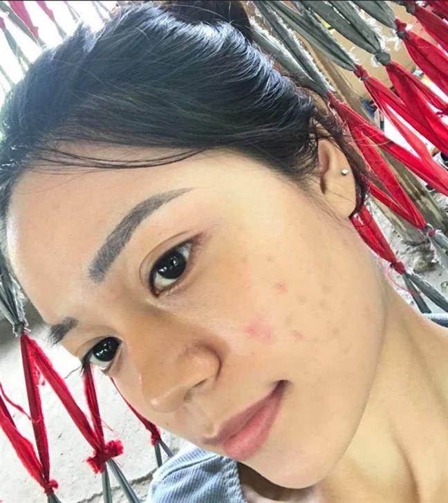 3 phuong phap thai doc cho da hieu qua do moi truong ban