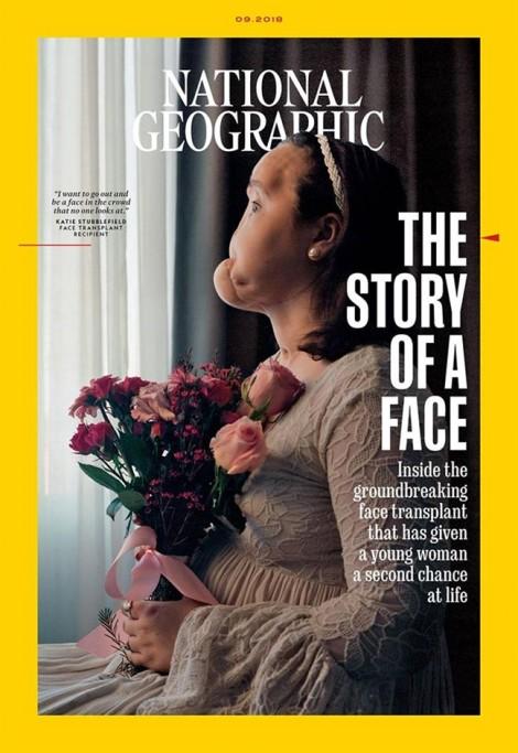 Hành trình phi thường tìm kiếm diện mạo mới cho cô gái trẻ tự bắn súng nát mặt
