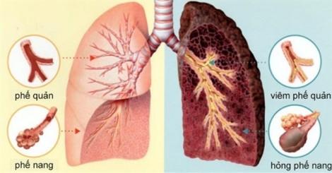 Cách phát hiện ung thư phổi sớm