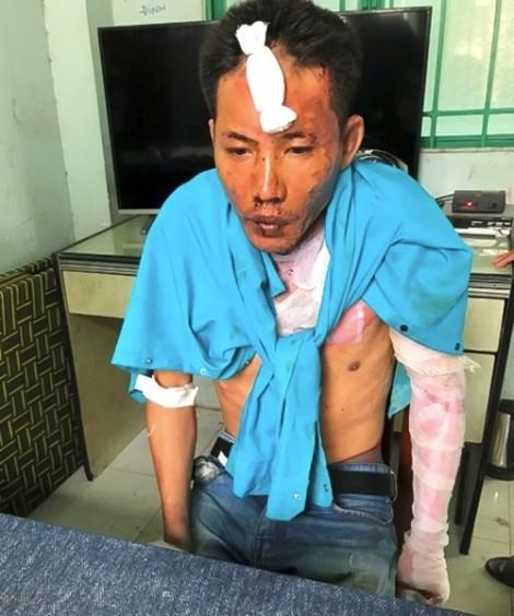 Hai người con bị cha dượng tẩm xăng đốt ở Đồng Nai đã tử vong