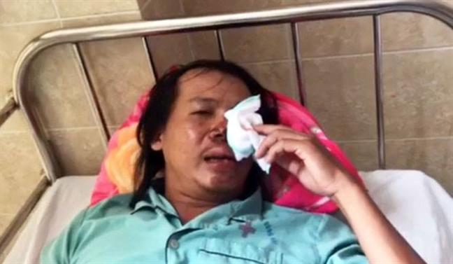 Dong Nai: Nhom trom cho dung sung dien ban 'hiep si'