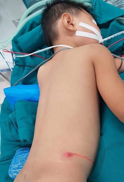 Bé trai 5 tuổi bị đạn súng hơi găm vào cột sống