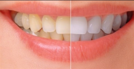 Vì sao thuốc kháng sinh gây vàng răng?