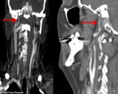 Đi tắm biển, một phụ nữ bị sóng đánh vỡ động mạch cổ