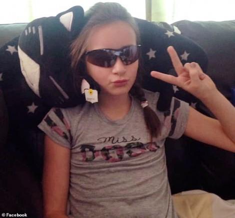 Đeo kính áp tròng hóa trang Halloween bé gái 11 tuổi suýt bị mù