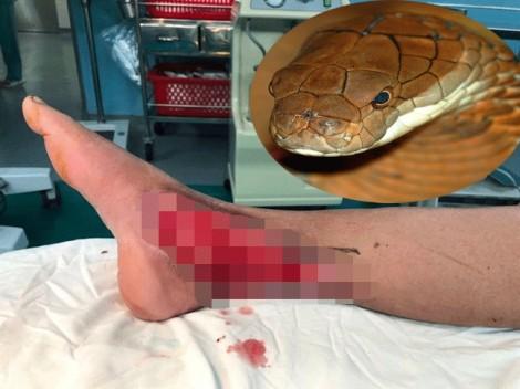 Rắn độc cắn nát chân bà cụ, bác sĩ phải dùng kỹ thuật cao để che vết thương
