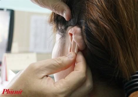 Bấm lỗ vành tai theo mốt, cô gái bị sẹo lồi to như trứng gà