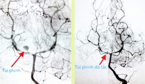 Bé gái 3 tuổi vỡ mạch máu não ngay tại Bệnh viện Nhi đồng 2