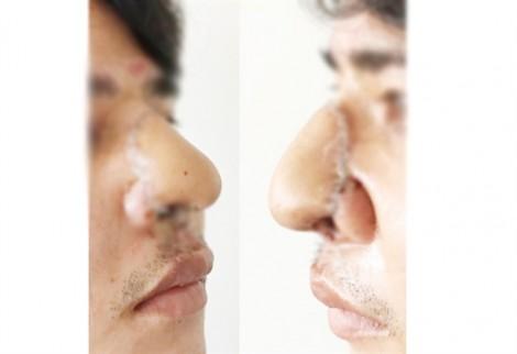 Bác sĩ Chợ Rẫy dùng da cẳng tay tạo đầu mũi bị dao chém đứt lìa